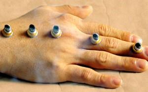 acupuncture_mox01